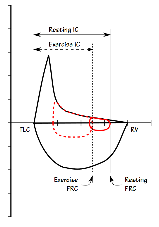 IC Exercise COPD