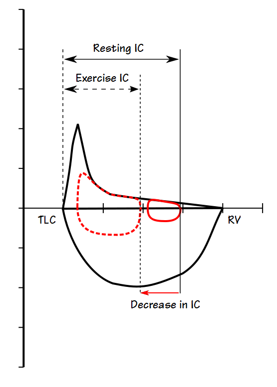 Exercise IC