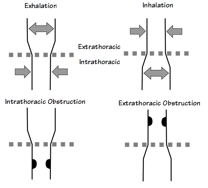 Extrathoracic Intrathoracic Obstructions