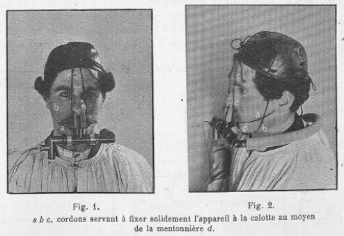 nasal_breathing_valve_tissot_1904_in_use